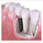 Dental Implants Singapore