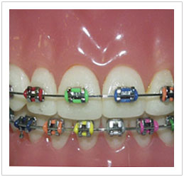 Orthodontics Singapore