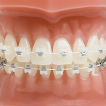 Advantages Of Wearing Braces When You Are In Your Teens