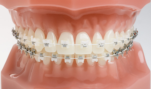 ceramic braces align and straighten teeth and help to position them