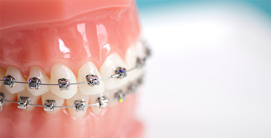 Ceramic braces function the same way as metallic braces do
