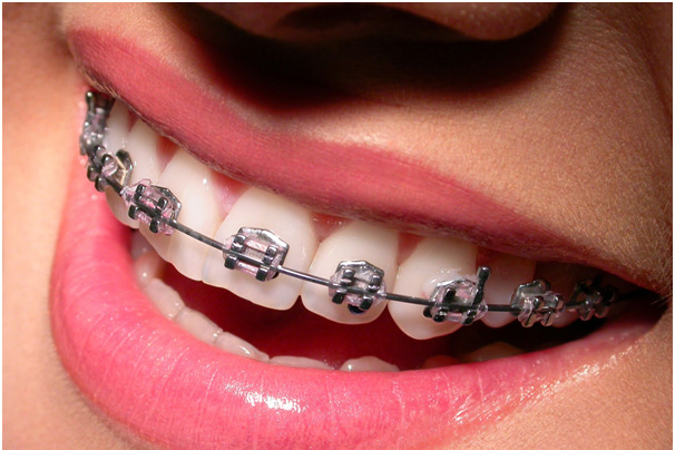 Metal Braces Singapore can be silver or gold coloured