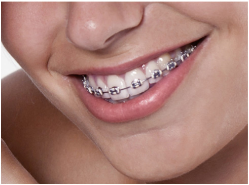 Metal Braces Singapore improve the confidence