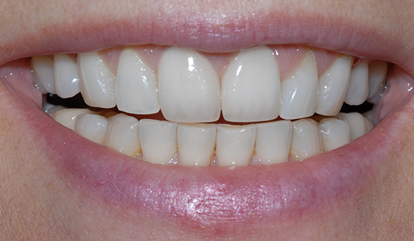 cosmetic dentistry smile