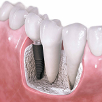 3 Advantages of Dental Implants Over Dentures