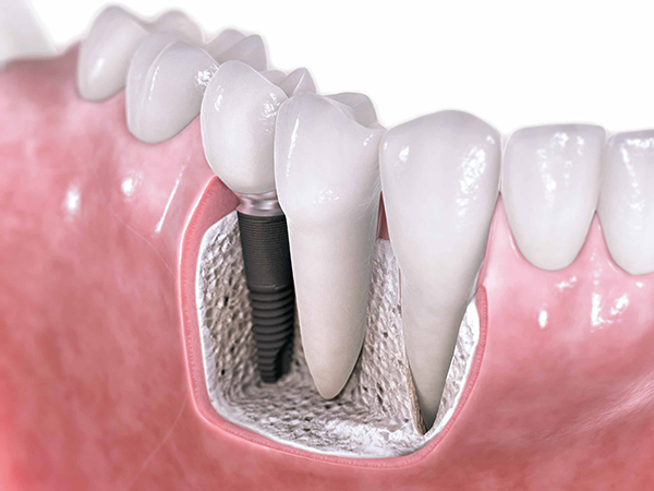 dental implant close up image