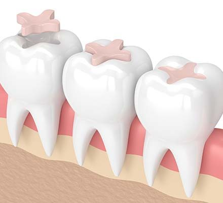 Tooth-coloured fillings