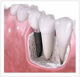 Dental Implants Singapore