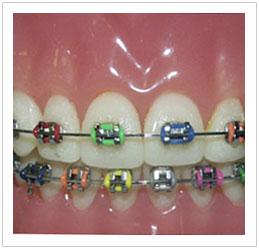 Orthodontics Singapore