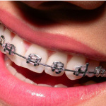 Do Not Let Wearing Metal Braces Singapore Stop You From Enjoying Your Life