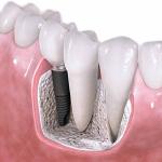 3 Advantages of Dental Implants Over Dentures